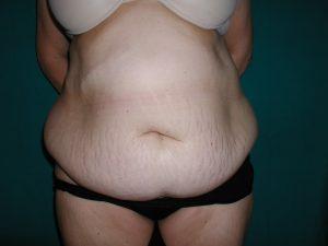Abdominoplastie-33