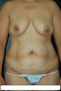 Abdominoplastie-1