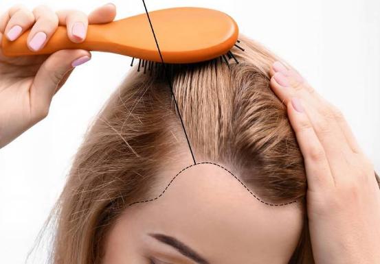 Greffe de Cheveux Féminine