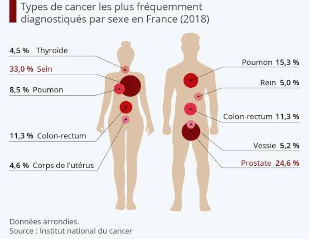 Diagramme de Proportion du Cancer