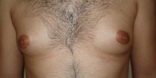 Gynécomastie Avant 2