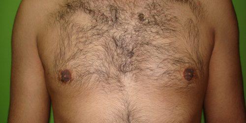 Gynécomastie Après 2