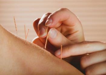 Acupuncture-3