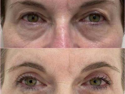 Blépharoplastie-avant -après-2