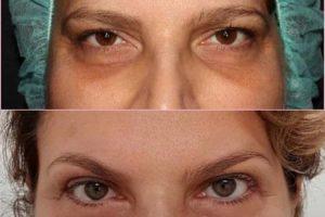 Blépharoplastie-avant -après
