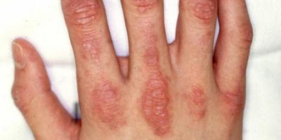 Dermatomyosites