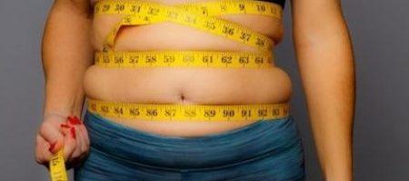Obésité.2