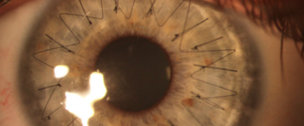 Point-suture-oeil-greffe-cornée