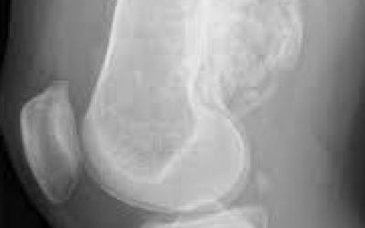 Tumeurs osseses