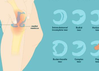 Types de meniscus