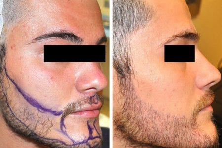 Greffe de barbe avant-après