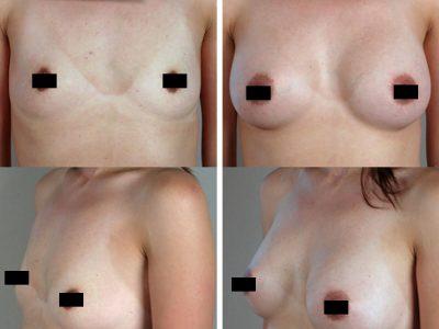 mammoplastie-3