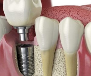 protheses-dentaires-sur-implants-dentaires